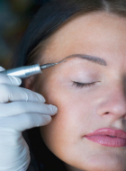 woman gets permanent makeup removed